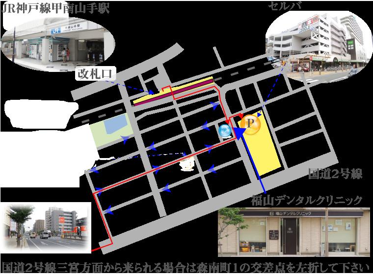 神戸市東灘区甲南山手にある歯科・歯医者の福山デンタルクリニックのアクセスマップ