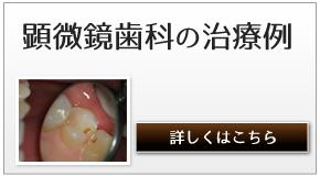 顕微鏡歯科の治療例へのリンク