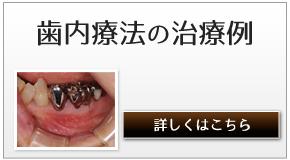 歯内療法の治療例へのリンク