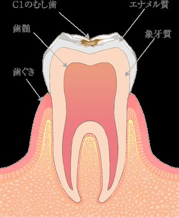 神戸市東灘区甲南山手にある歯科・歯医者の福山デンタルクリニックのC1のむし歯