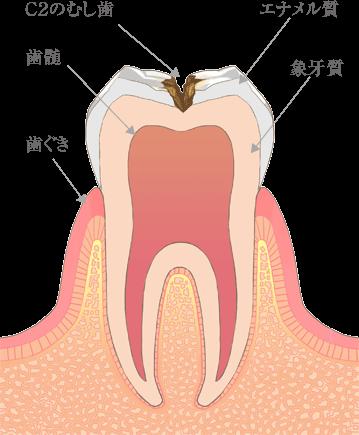 神戸市東灘区甲南山手にある歯科・歯医者の福山デンタルクリニックのC2のむし歯