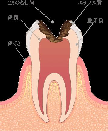 神戸市東灘区甲南山手にある歯科・歯医者の福山デンタルクリニックのC3のむし歯