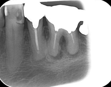 神戸市東灘区甲南山手にある歯科・歯医者の福山デンタルクリニックの歯内療法治療前のレントゲン写真