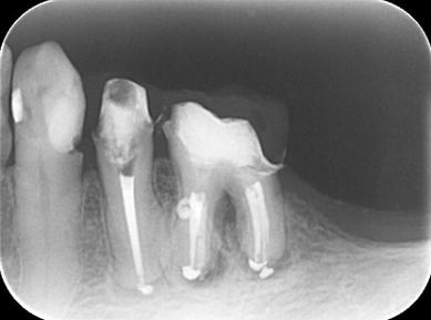 神戸市東灘区甲南山手にある歯科・歯医者の福山デンタルクリニックの歯内療法治療後のレントゲン写真