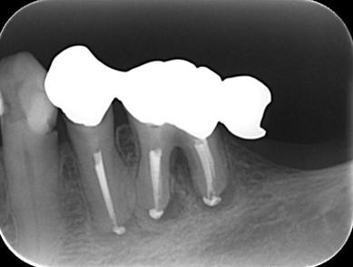 神戸市東灘区甲南山手にある歯科・歯医者の福山デンタルクリニックの歯内療法治療2週間後の写真
