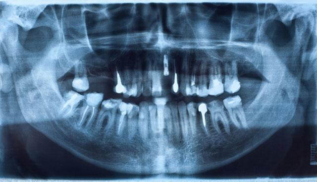 神戸市東灘区甲南山手にある歯科・歯医者の福山デンタルクリニックのインプラントCTレントゲン写真