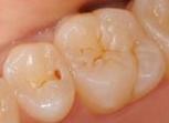 神戸市東灘区甲南山手にある歯科・歯医者の福山デンタルクリニックの顕微鏡治療例