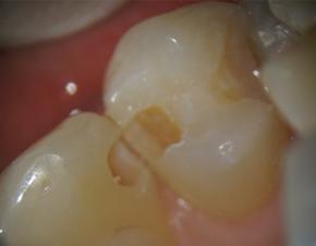 神戸市東灘区甲南山手にある歯科・歯医者の福山デンタルクリニックの顕微鏡で16倍に拡大した歯の写真
