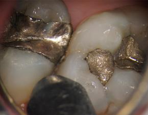神戸市東灘区甲南山手にある歯科・歯医者の福山デンタルクリニックの顕微鏡で拡大した歯と歯の間のむし歯の写真
