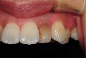 神戸市東灘区甲南山手にある歯科・歯医者の福山デンタルクリニックのホワイトニング前