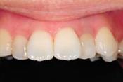 神戸市東灘区甲南山手にある歯科・歯医者の福山デンタルクリニックのホワイトニング後