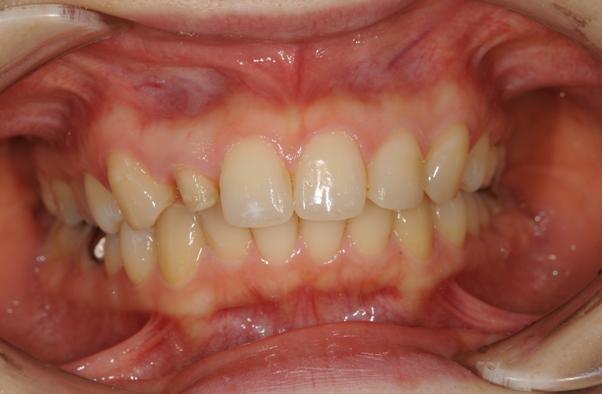 神戸市東灘区甲南山手にある歯科・歯医者の福山デンタルクリニックのセラミックの被せもの写真術前