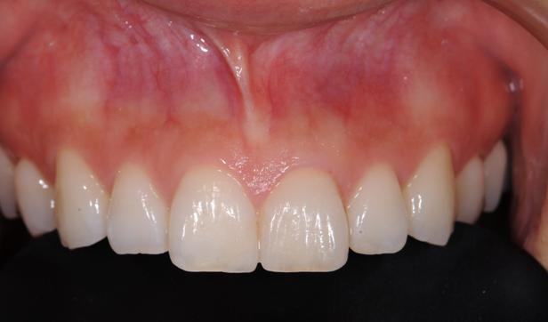 神戸市東灘区甲南山手にある歯科・歯医者の福山デンタルクリニックのセラミックの被せもの写真術後