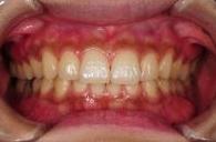 神戸市東灘区甲南山手にある歯科・歯医者の福山デンタルクリニックのメラニン色素除去写真術前