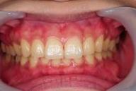 神戸市東灘区甲南山手にある歯科・歯医者の福山デンタルクリニックのメラニン色素除去写真術後