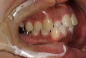 神戸市 むし歯治療写真