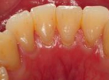 歯石が付着している歯の写真