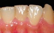 歯の表面の比較写真