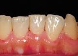 歯石除去後の写真