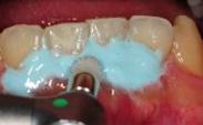 歯の表面を磨いている写真