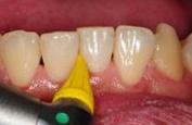 歯の間を磨いている写真