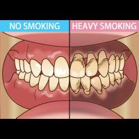 タバコを吸わない人と吸う人の汚れの比較のイラスト